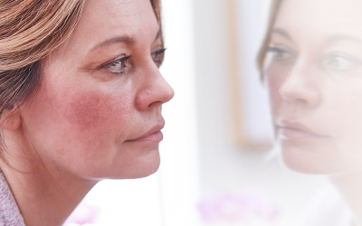 6 Little Known Facts of Rosacea